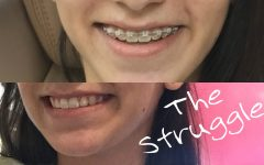 Eight Feelings You Experience When Getting Your Braces Off